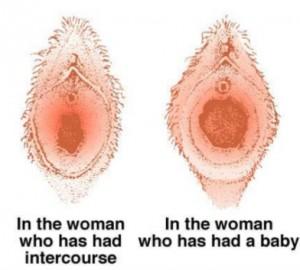 anatomyof-female-genital-tract-15-638