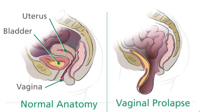 sacrocolpopexy-pelvic-prolimage-1024x393