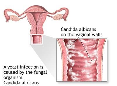 Is vaginal itching a side effect of having sex