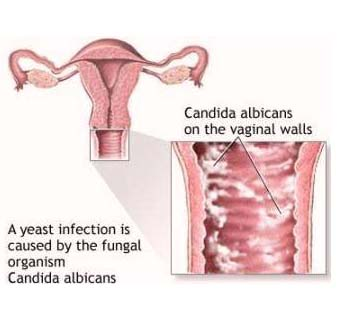 vaginal-yeast-infection-symptoms