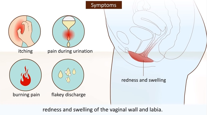 Vaginal yeast infection diagram