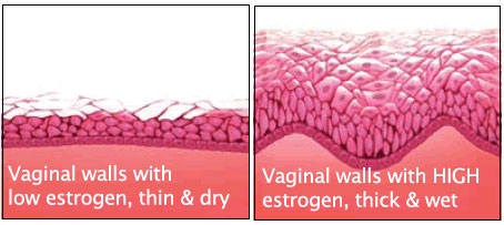 Vaginal Dryness: How to Naturally Cure It - Vagifirm