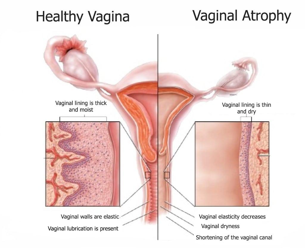 symptoms vagina
