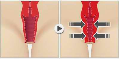 vaginoplasty 1