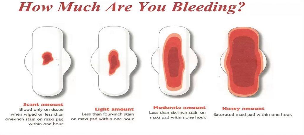 vaginal bleeding - Vagifirm