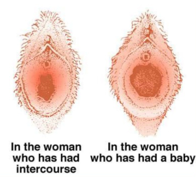 Is Your Vagina Loose After Childbirth? - Boldskycom