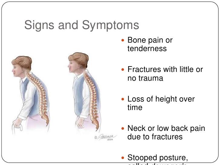 osteoporosis-6-728