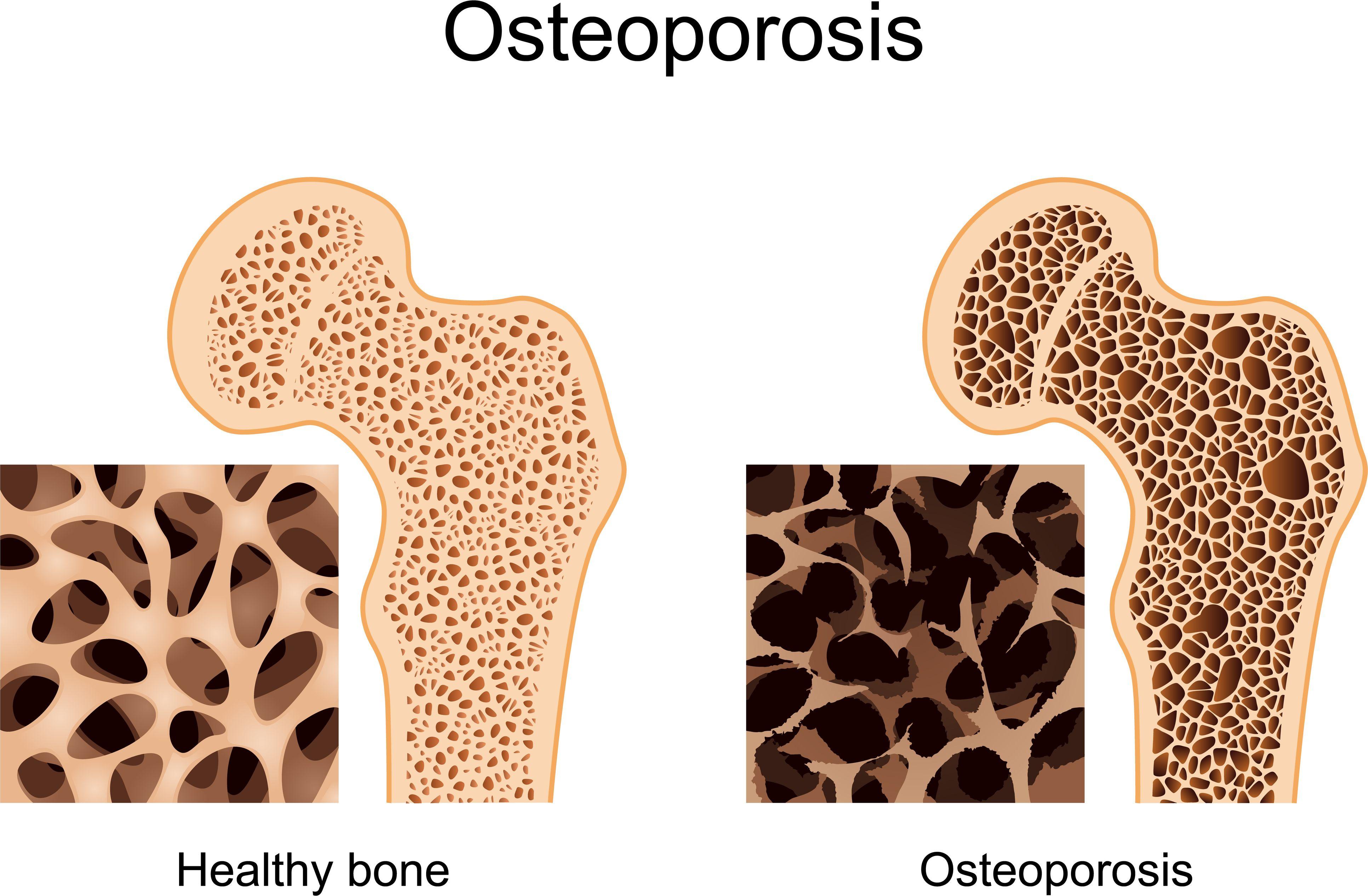 osterporosis