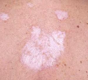 lichen schlerosus