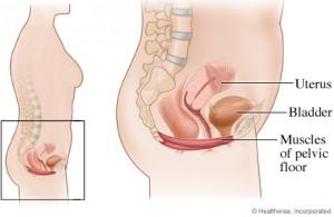 pelvic collapse