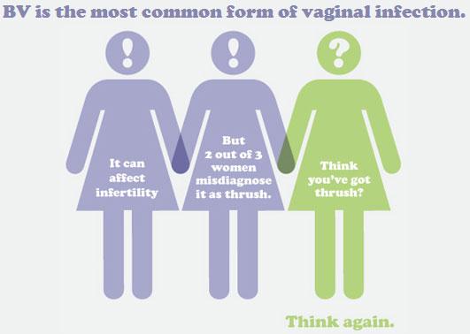 Bacterial vaginosis - Wikipedia