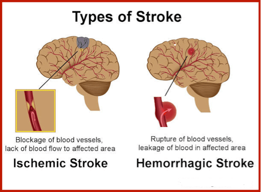Stroke-And-Its-Warning-Symptoms-types