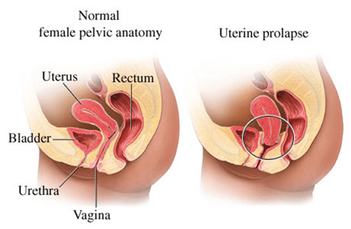 simptomi-opusheniya-stenok-vlagalisha