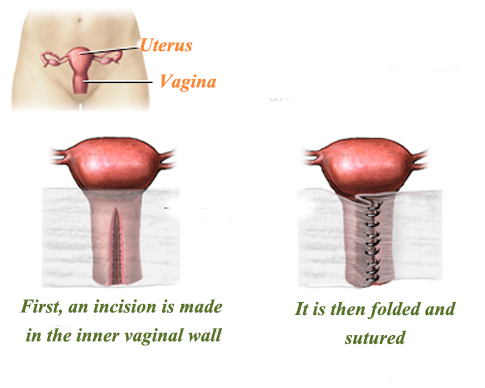 What helps tighten the vagina