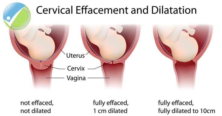 cervical-changes-during-preg