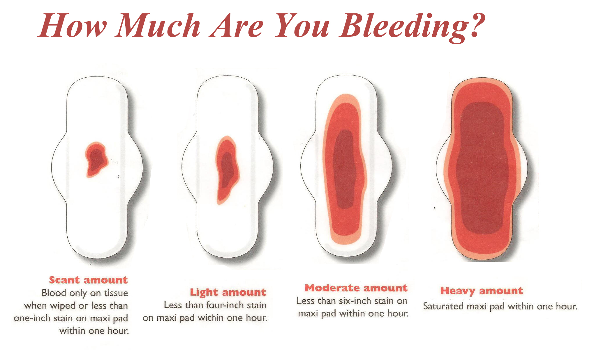 Bleeding after sex normal